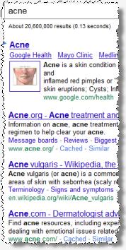 Ben Edelman: Suchanfrage acne