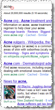 Ben Edelman: Suchanfrage acne,